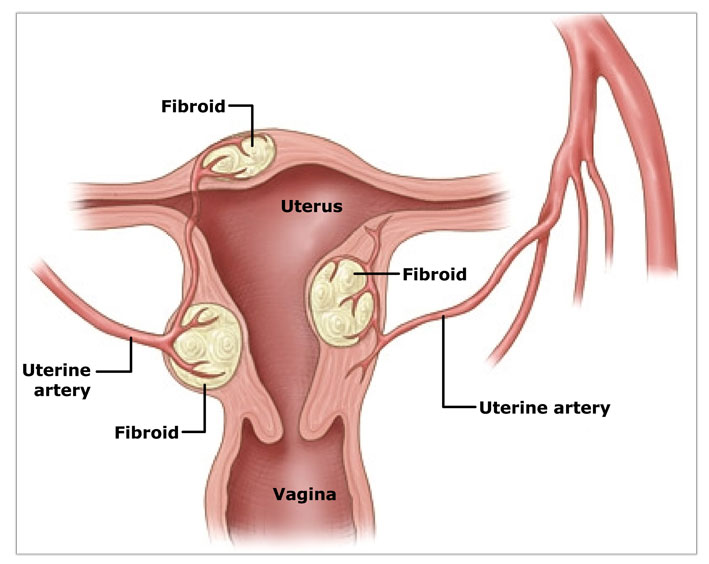 Fibroid-Picture